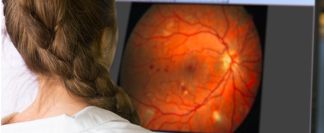Doctor looking at image of an eye on a computer monitor.