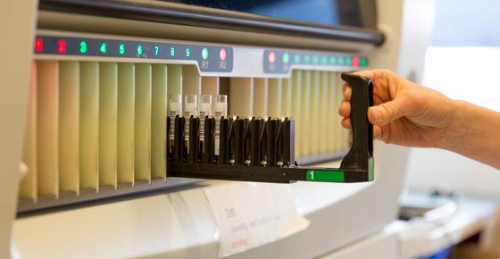 Blood sample analysis machine.